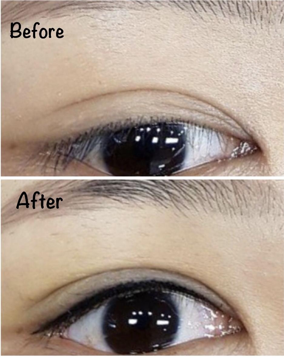 Eyeline8