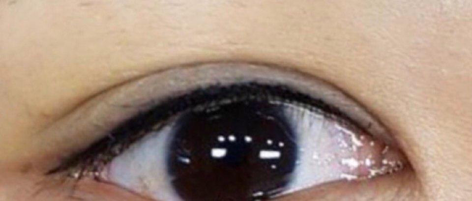 Eyeline14